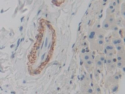 Immunohistochemistry (Formalin/PFA-fixed paraffin-embedded sections) - Anti-ACTG2 antibody (ab231802)