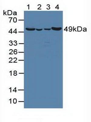 Western blot - Anti-ornithine aminotransferase antibody (ab231808)