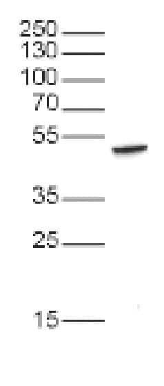 Western blot - Anti-EED antibody (ab231812)