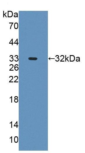 Western blot - Anti-AGXT2 antibody (ab231815)