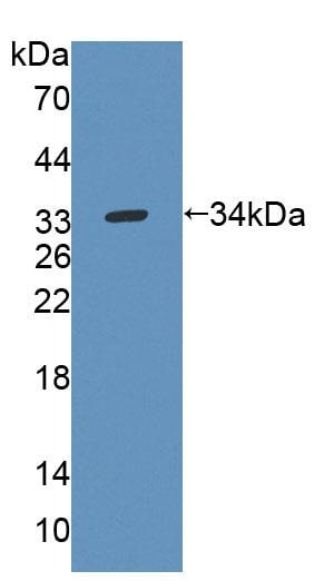 Western blot - Anti-Uridine Phosphorylase 1 antibody (ab231817)