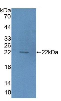 Western blot - Anti-HIBCH antibody (ab231820)
