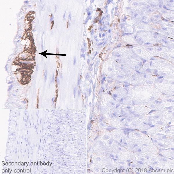 Immunohistochemistry (Formalin/PFA-fixed paraffin-embedded sections) - Anti-NCAM1 antibody [EPR21827] - BSA and Azide free (ab231826)