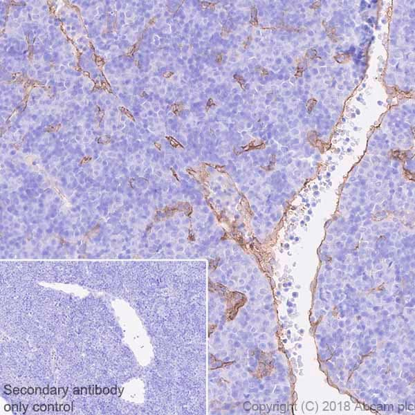 Immunohistochemistry (Formalin/PFA-fixed paraffin-embedded sections) - Anti-CD105 antibody [EPR21846] - BSA and Azide free (ab231832)