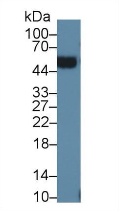 Western blot - Anti-Orosomucoid 2 antibody (ab231906)