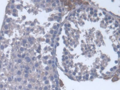Immunohistochemistry (Formalin/PFA-fixed paraffin-embedded sections) - Anti-Cytochrome P450 17A1/CYP17A1 antibody (ab231914)