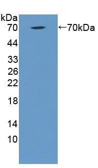 Western blot - Anti-CD93 antibody (ab231945)