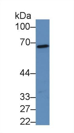Western blot - Anti-Fibrinogen alpha chain antibody (ab231946)