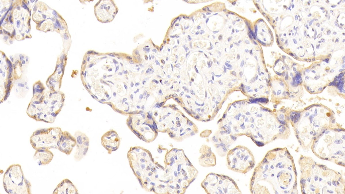Immunohistochemistry (Formalin/PFA-fixed paraffin-embedded sections) - Anti-Desmoglein 3/PVA antibody (ab231947)