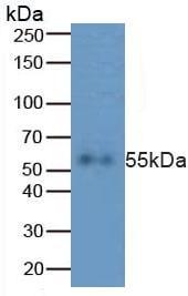 Western blot - Anti-Caspase-8 antibody (ab231948)