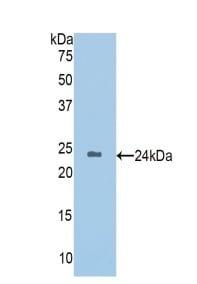 Western blot - Anti-HGD antibody (ab231953)