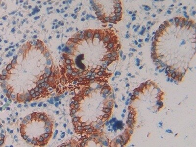 Immunohistochemistry (Formalin/PFA-fixed paraffin-embedded sections) - Anti-Cytokeratin 20 antibody (ab231954)