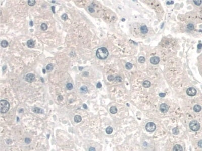 Immunohistochemistry (Formalin/PFA-fixed paraffin-embedded sections) - Anti-CRM1 antibody (ab231965)