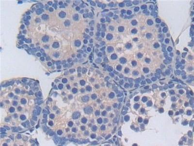 Immunohistochemistry (Formalin/PFA-fixed paraffin-embedded sections) - Anti-TXNIP antibody (ab231966)