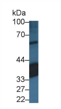 Western blot - Anti-CRALBP antibody (ab231967)