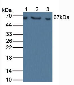 Western blot - Anti-Factor I/CFI antibody (ab231969)
