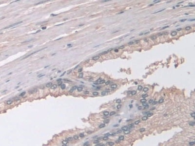 Immunohistochemistry (Formalin/PFA-fixed paraffin-embedded sections) - Anti-GAMT antibody (ab231972)