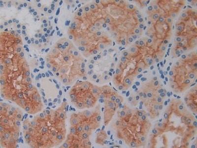Immunohistochemistry (Formalin/PFA-fixed paraffin-embedded sections) - Anti-CD26 antibody (ab231973)