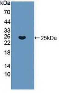 Western blot - Anti-KRAS antibody (ab231974)