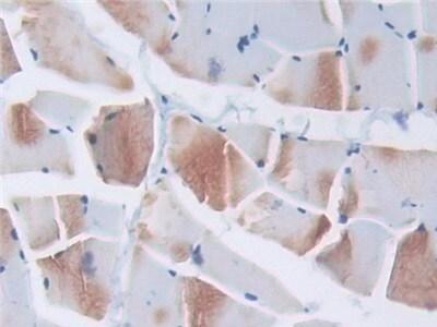 Immunohistochemistry (Formalin/PFA-fixed paraffin-embedded sections) - Anti-Elongin A antibody (ab231980)