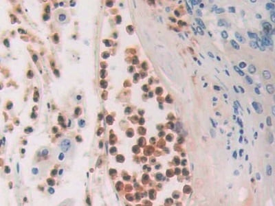 Immunohistochemistry (Formalin/PFA-fixed paraffin-embedded sections) - Anti-CDA antibody (ab231981)