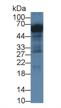 Western blot - Anti-CROP antibody (ab231982)