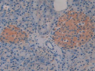 Immunohistochemistry (Formalin/PFA-fixed paraffin-embedded sections) - Anti-CD46 antibody (ab231984)