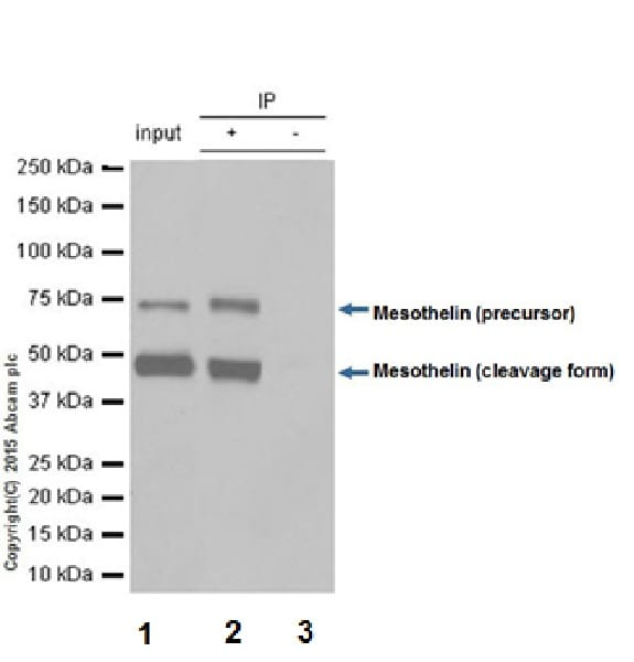 Immunoprecipitation - Anti-Mesothelin antibody [EPR17823-69] - BSA and Azide free (ab232219)