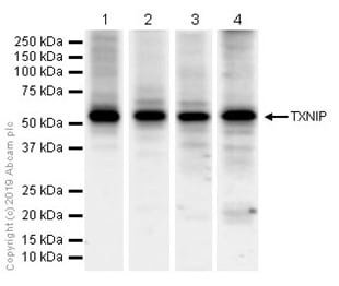 Western blot - Anti-TXNIP antibody [EPR14774-ChiM-IgG2b] - BSA and Azide free (ab232330)