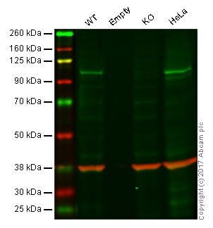 Western blot - Anti-Aryl hydrocarbon Receptor antibody [EPR7119(N)(2)] - BSA and Azide free (ab232331)