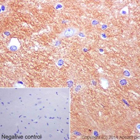 Immunohistochemistry (Formalin/PFA-fixed paraffin-embedded sections) - Anti-beta Tubulin antibody [EPR16774] - BSA and Azide free (ab232361)