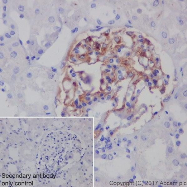 Immunohistochemistry (Formalin/PFA-fixed paraffin-embedded sections) - Anti-PLA2R antibody [EPR20483] - BSA and Azide free (ab232362)