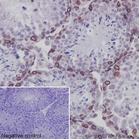 Immunohistochemistry (Formalin/PFA-fixed paraffin-embedded sections) - Anti-SUN2 antibody [EPR6557] - BSA and Azide free (ab232365)