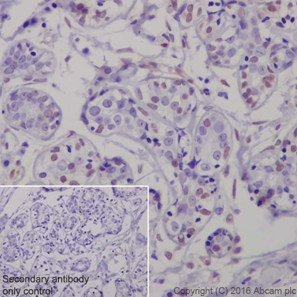 Immunohistochemistry (Formalin/PFA-fixed paraffin-embedded sections) - Anti-ERK1 (phospho T202) + ERK2 (phospho T185) antibody [EPR19401] - BSA and Azide free (ab232370)