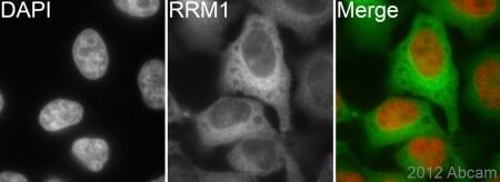 Immunocytochemistry/ Immunofluorescence - Anti-RRM1 antibody [EPR8483] - BSA and Azide free (ab232382)