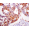 Immunohistochemistry (Formalin/PFA-fixed paraffin-embedded sections) - Anti-RRM1 antibody [EPR8483] - BSA and Azide free (ab232382)