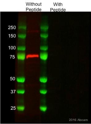 Western blot - Anti-5HT2C Receptor antibody [EPR6487] - BSA and Azide free (ab232385)