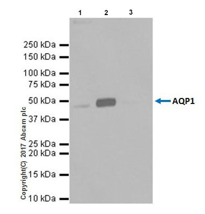 Immunoprecipitation - Anti-Aquaporin 1 antibody [EPR20325] - BSA and Azide free (ab232399)