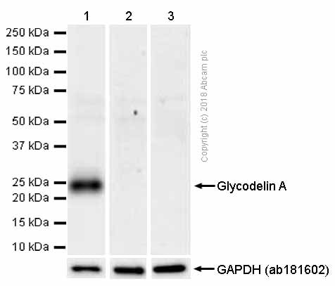 Western blot - Anti-PAEP/Glycodelin antibody [EP870Y] - BSA and Azide free (ab232406)