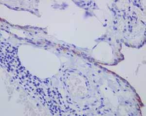 Immunohistochemistry (Formalin/PFA-fixed paraffin-embedded sections) - Anti-Mesothelin antibody [EPR2685(2)] - BSA and Azide free (ab232411)