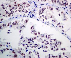 Immunohistochemistry (Formalin/PFA-fixed paraffin-embedded sections) - Anti-ERCC1 antibody [EPR7277] - BSA and Azide free (ab232422)