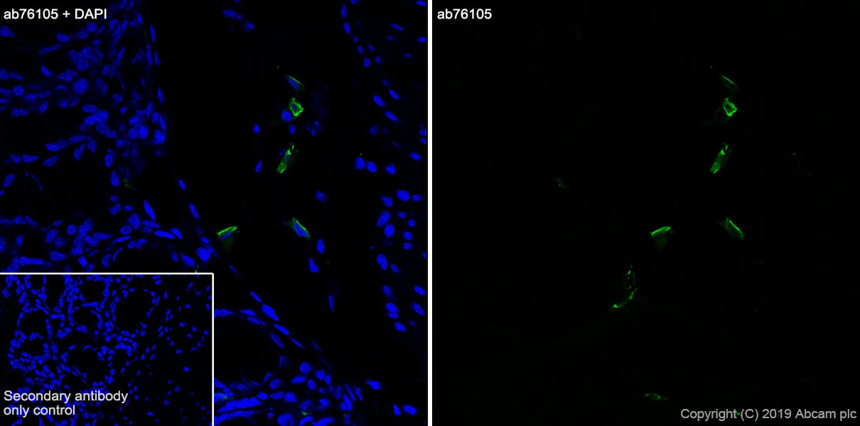 Immunohistochemistry (Frozen sections) - Anti-Factor XIIIa antibody [EP3372] - BSA and Azide free (ab232426)