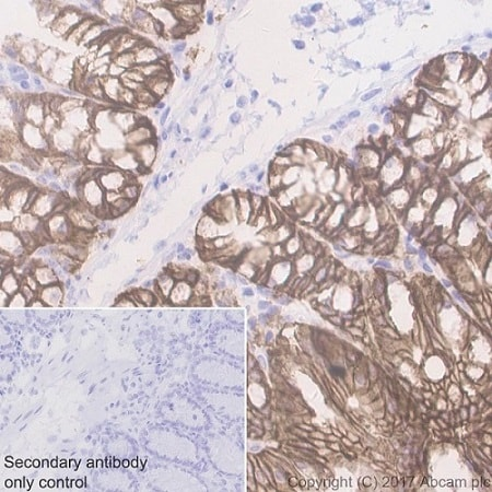 Immunohistochemistry (Formalin/PFA-fixed paraffin-embedded sections) - Anti-EpCAM antibody [EPR20533-266] - BSA and Azide free (ab232437)