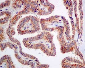 Immunohistochemistry (Formalin/PFA-fixed paraffin-embedded sections) - Anti-ME3 antibody [EPR10378] - BSA and Azide free (ab232459)
