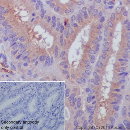Immunohistochemistry (Formalin/PFA-fixed paraffin-embedded sections) - Anti-Serum Amyloid P/SAP antibody [EP1018Y] - BSA and Azide free (ab232468)