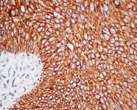 Immunohistochemistry (Formalin/PFA-fixed paraffin-embedded sections) - Anti-GNA13 antibody [EPR5436] - BSA and Azide free (ab232478)