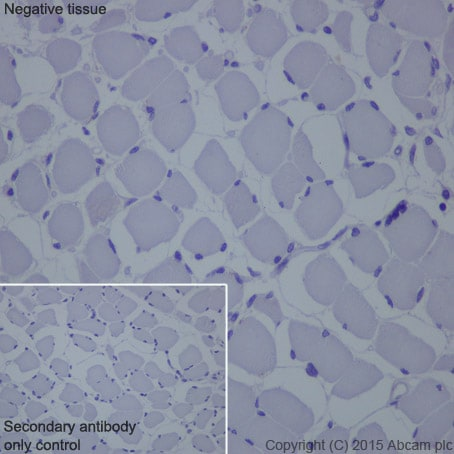 Immunohistochemistry (Formalin/PFA-fixed paraffin-embedded sections) - Anti-Cytokeratin 16/K16 antibody [EP1615Y] - BSA and Azide free (ab232522)