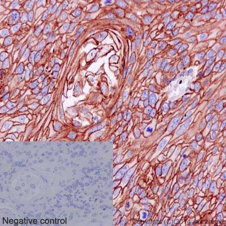Immunohistochemistry (Formalin/PFA-fixed paraffin-embedded sections) - Anti-S100A10 antibody [EPR3317] - BSA and Azide free (ab232524)