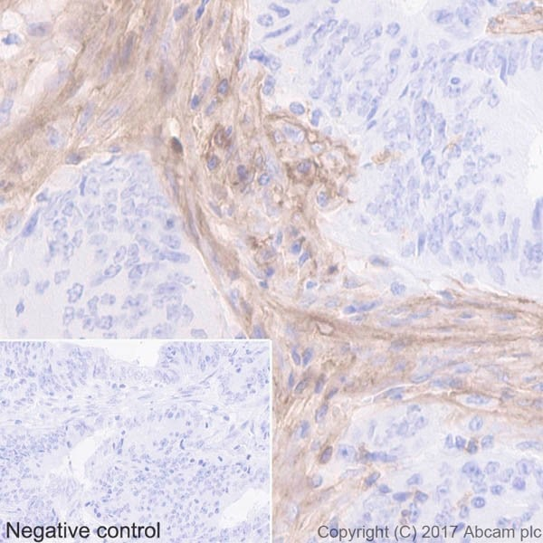 Immunohistochemistry (Formalin/PFA-fixed paraffin-embedded sections) - Anti-CD39 antibody [EPR20461] - BSA and Azide free (ab232537)