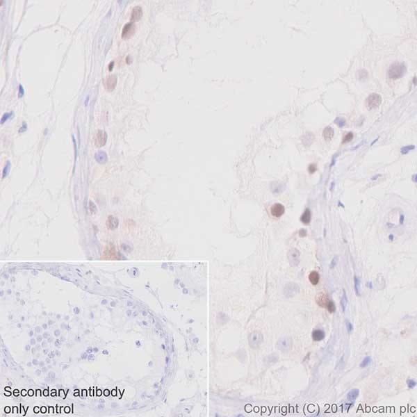 Immunohistochemistry (Formalin/PFA-fixed paraffin-embedded sections) - Anti-PRAME antibody [EPR20330] - BSA and Azide free (ab232571)